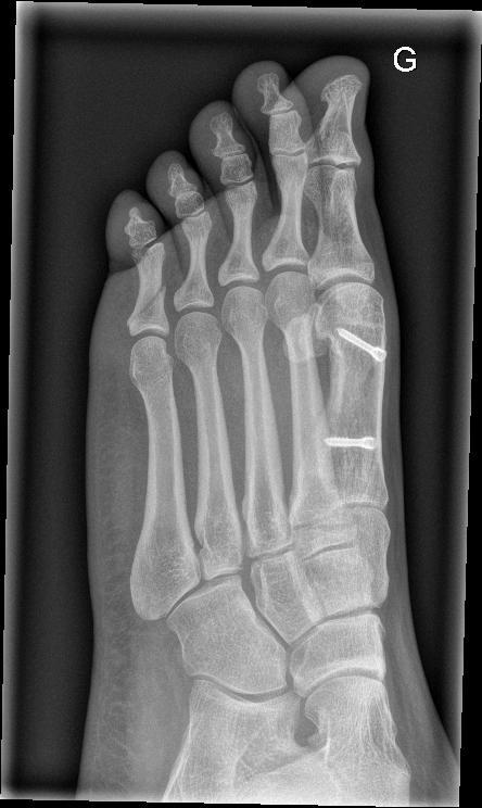 X-rays provide proof that Zoe is wierd on the inside